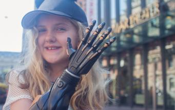 В Великобритании начались испытания бионических протезов для детей