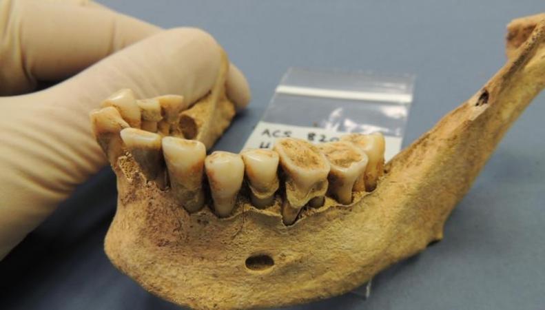 Зубной камень древних скелетов помог ученым выяснить истоки болезней