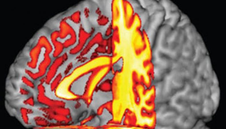 Болезнь Альцгеймера связана с группой крови, - британские ученые