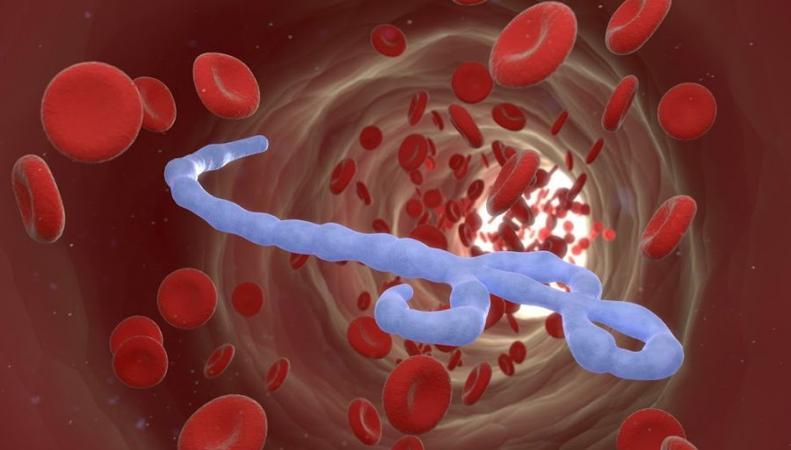 Зараженная лихорадкой Эбола медсестра из Британии находится в критическом состоянии, http://www.ruscur.ru/