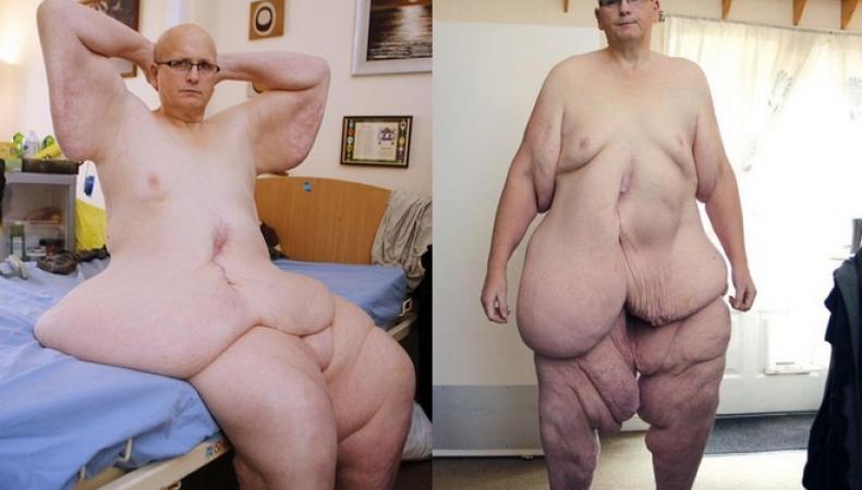 Британец похудел на 3 центнера ради своей возлюбленной