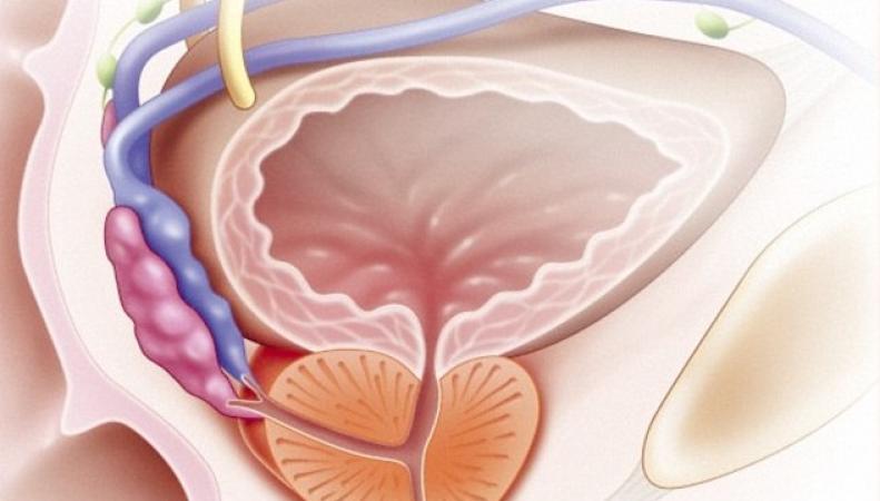 Британские ученые создали генетическую карту рака предстательной железы