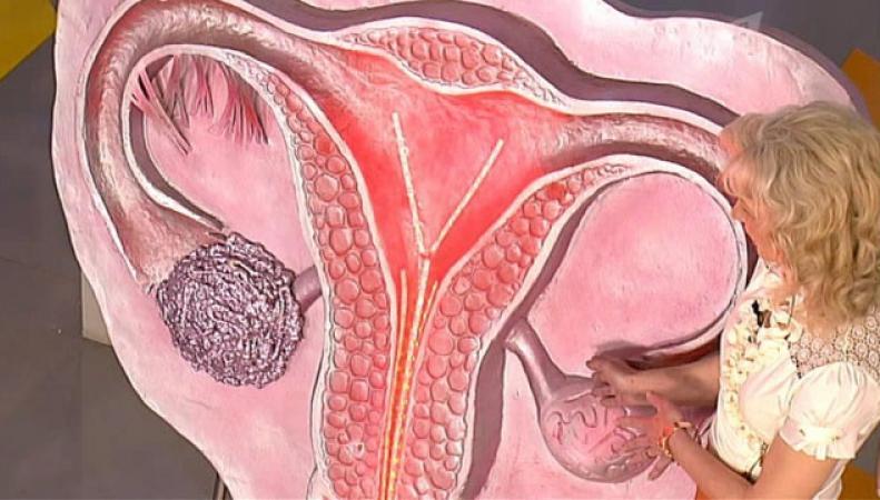 Британские ученые создали метод по раннему выявлению рака яичников