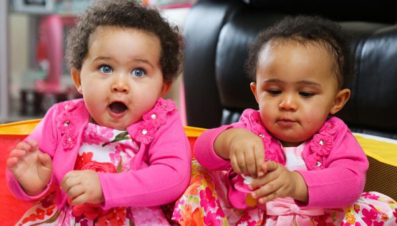 Девочки-близнецы с разным цветом кожи