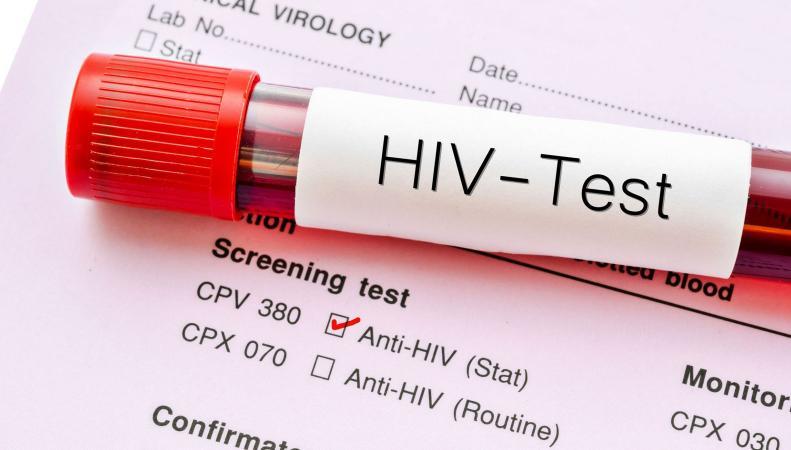 Антиретровирусная терапия остановит пандемию ВИЧ, - британские ученые