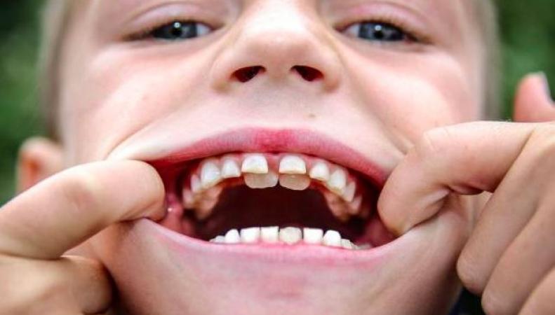 Британский школьник со вторым рядом зубов
